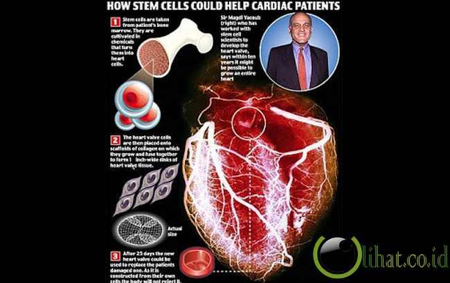 Membuat Organ Tubuh Dengan Sel Induk