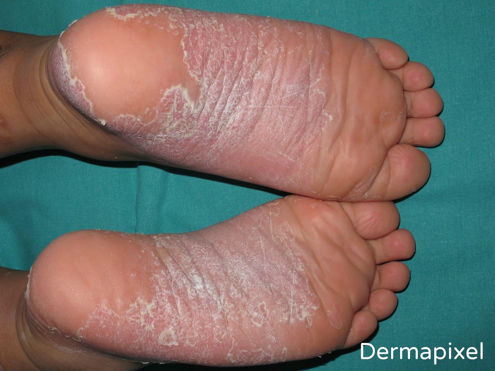 Cuando a los mamones pasa atopichesky la dermatitis a