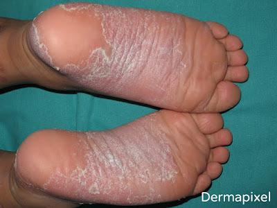 La psoriasis el tratamiento por el veneno abejuno