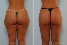 la liposuccion des fesses est une solution pour retrouver des fesses fermes