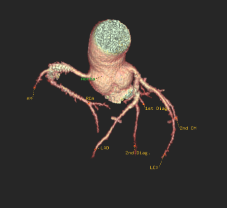 Coronary cusp anatomy
