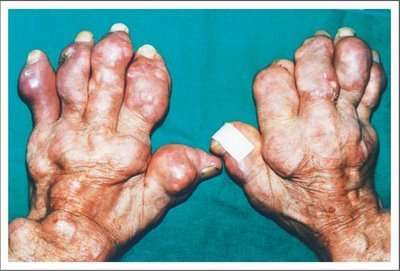 tratamiento para crisis aguda de gota acido urico 5.7 medicamento natural acido urico