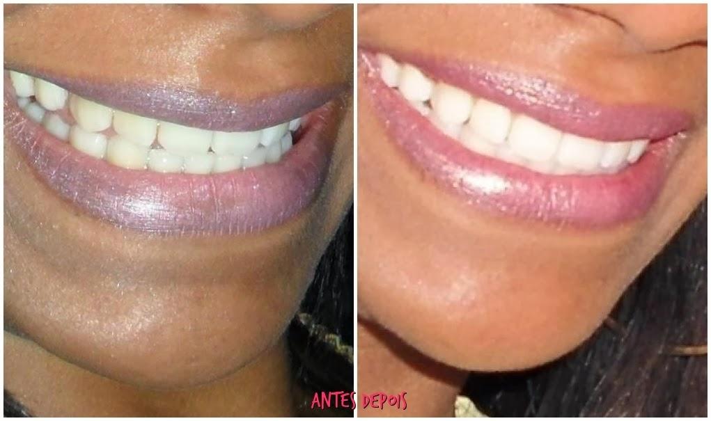 Tag Kit Clareamento Dental Whiteness Perfect 22