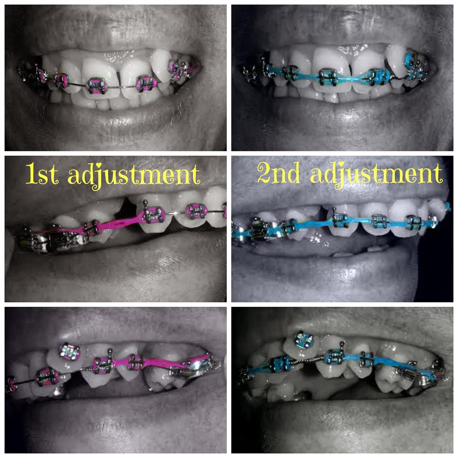 Adult Braces - My Journey : 2nd Braces Adjustment