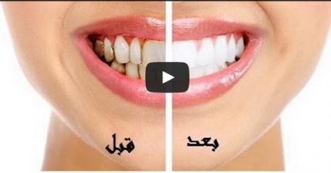 طريقة فعالة لتبييض الاسنان وازالة رائحة الفم