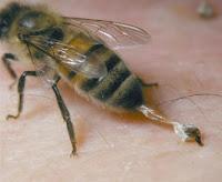 8 Cara Mengobati Gejala Sengatan Lebah dengan cepat