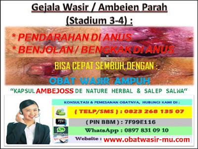 Jual Kapsul Ambejoss Obat Wasir Di Bali (Telp/SMS) 081914906800 _ Gejala Wasir / Ambeien Stadium 3 - 4