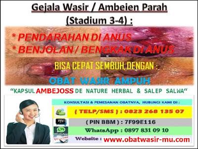 Jual Kapsul Ambejoss Obat Wasir Di Kediri (Telp/SMS) 081914906800 _ Gejala Wasir / Ambeien Stadium 3 - 4