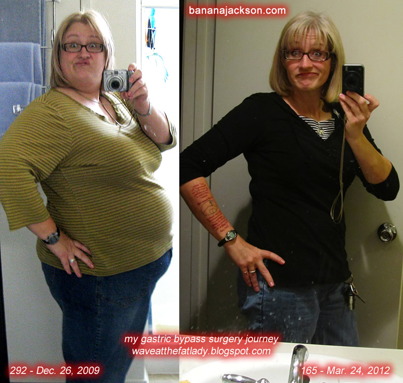 Weight loss hypnosis free