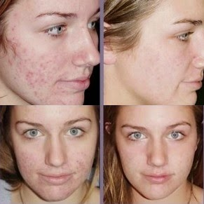 Revitol Scar Cream Before After Pictures 1