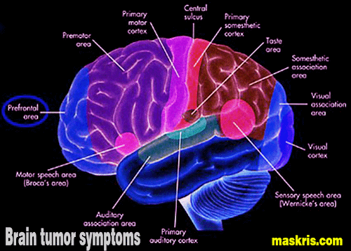 brain cancer Cancers that start in the brain are called primary brain tumours tumours can start in any part of the brain or related structures cancers that have spread to the brain from somewhere else in the body are called secondary brain tumours or brain metastases.
