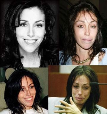 Heidi fleiss face and lips plastic surgery before and after