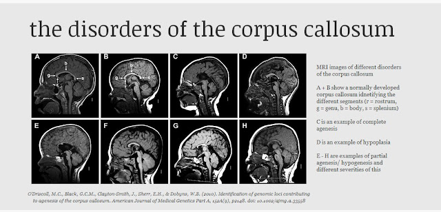 having a family member with agenesis of the corpus callosum Agenesis of the corpus callosum awareness has 2,139 members i created this group to spread awareness of a rare brain defect that only 1 in 4,000 people.