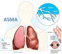Cara Tradisional Mengobati Penyakit Asma