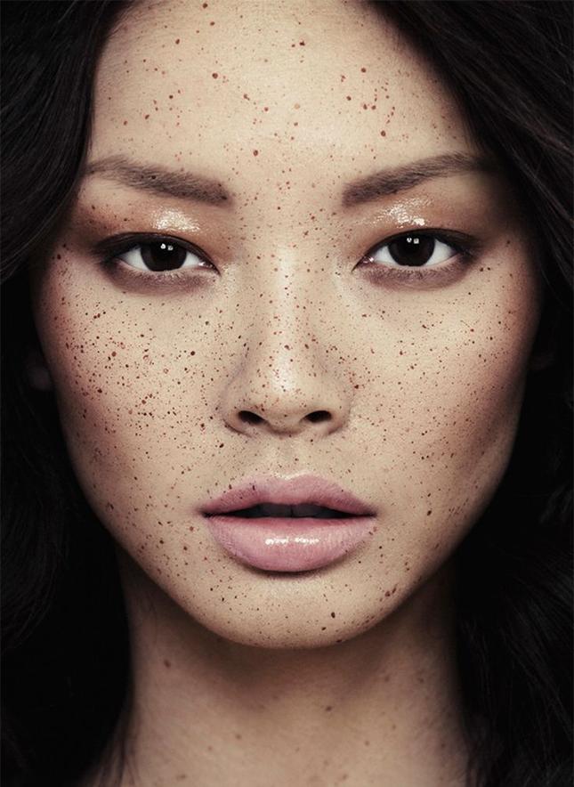 laser acné prix bordeaux 92
