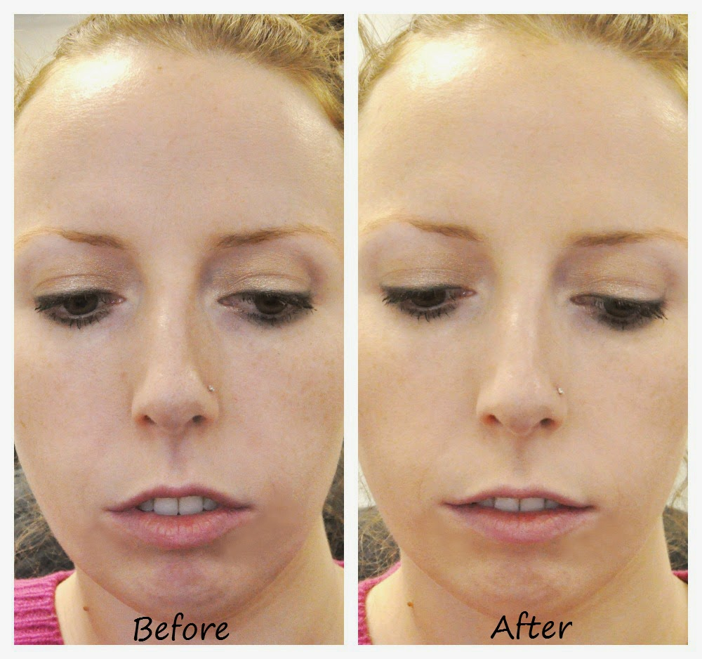 how to get fair complexion permanently
