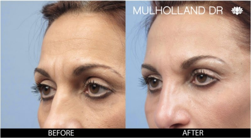 Before and after photo of Botox patient