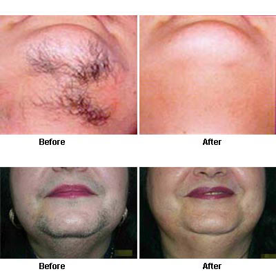 laserskin lift confidence
