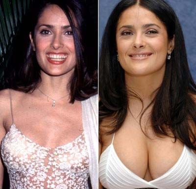 Top celebrities with breast implants (Before / After) | Know UR Ledge