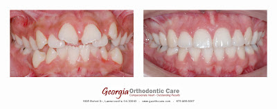 Teeth Extraction for Orthodontic Treatments, Lawrenceville Orthodontic, GA 30043