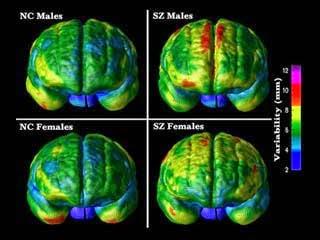 DOT optical brain scan