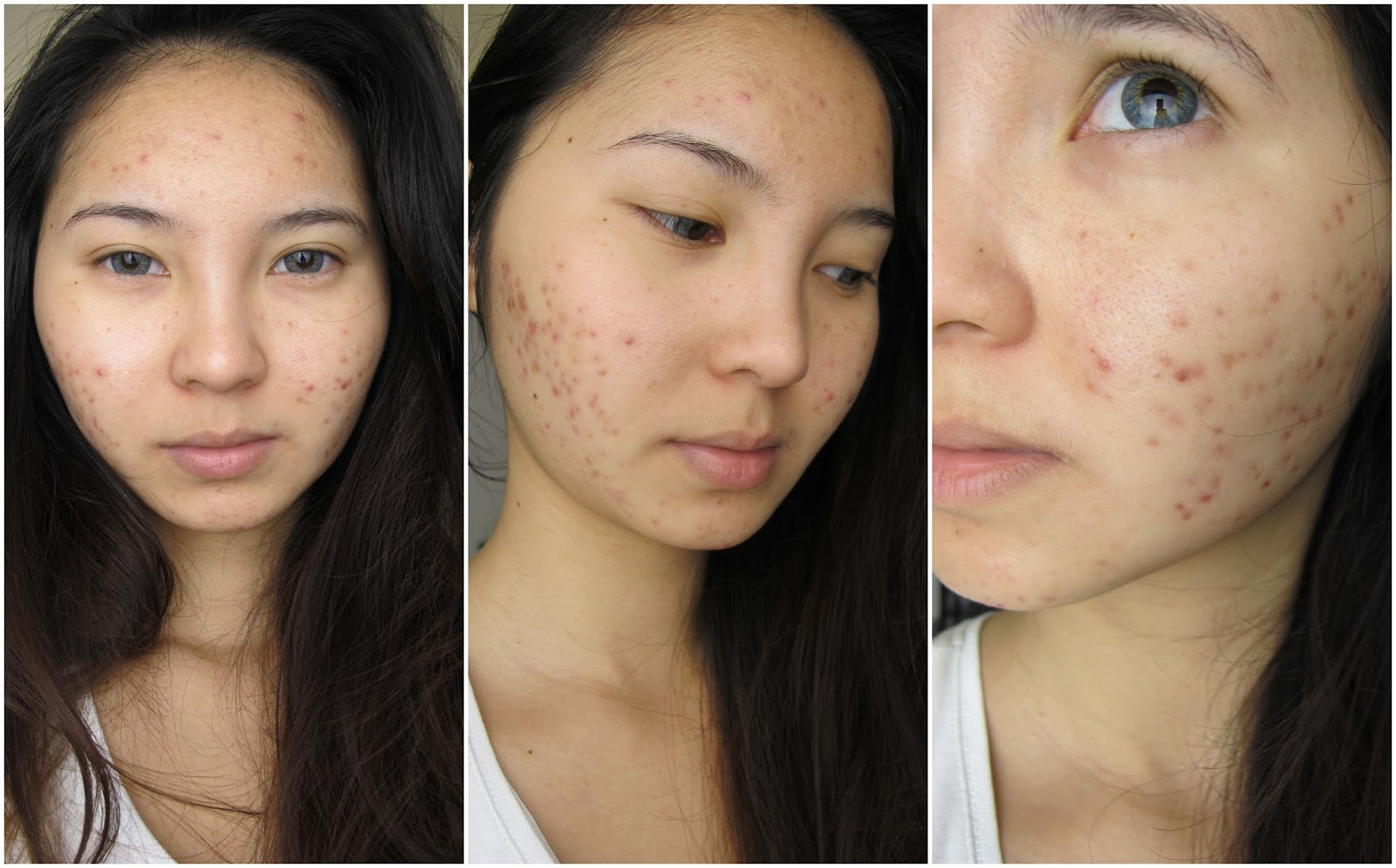 Best Coverage Makeup Acne Scars Vidalondon