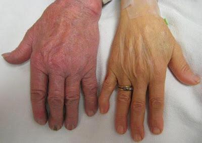 Symptoms And Treatment Of Hemochromatosis