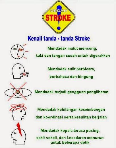 Gejala Penyakit Stroke Ringan
