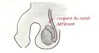 Vasectomie - Les hommes ont le choix de porter la contraception dans chirurgie contraceptive vasectomie+coupe