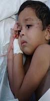 Segundo informações a criança de 03 anos que foi abandonada pela mãe depressiva em Serrolândia, está internado no Hospital de Várzea do Poço, está vomitando e deve ser transferido para o hospital de Feira de Santana.