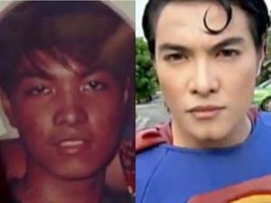 Operasi Wajah Agar Terlihat Mirip Superman ! [ www.BlogApaAja.com ]