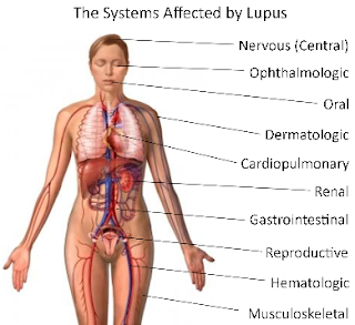 Penyakit Lupus : Ciri dan Gejala Penyakit Lupus