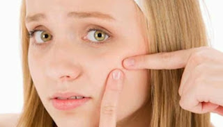 Tips cara menghilangkan komedo di wajah secara alami