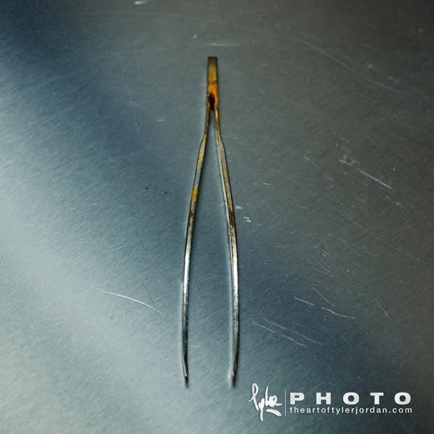 Objetos extraidos del pene de una persona por un Urologo