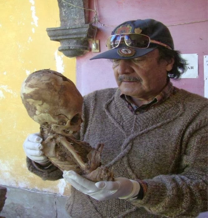 DNA ANALYSIS OF PARACAS ELONGATED SKULL RELEASED     WITH INCREDIBLE    Elongated Skulls Africa