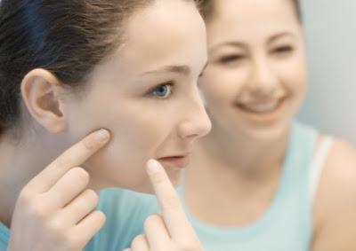 ¿El acné se quita solo con la edad?