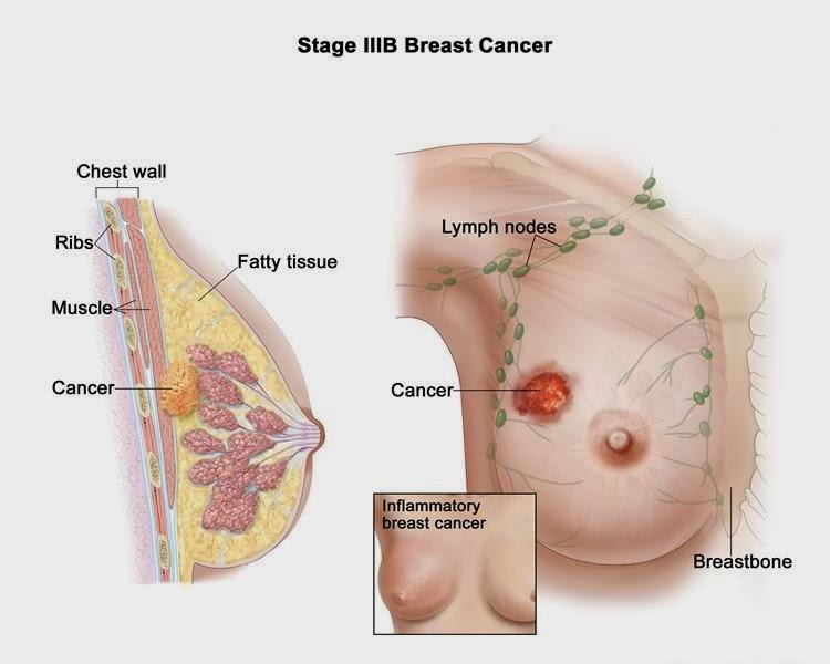 mariah carey breast implant