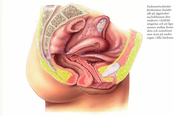 ubeskyttet samleje efter menstruation Solrød
