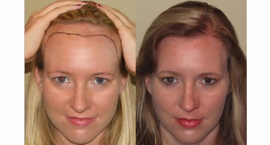 Women's Hair Transplant Before and After Gallery | Dr ...