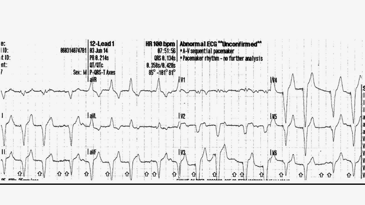 Abnormal 12 lead ecg