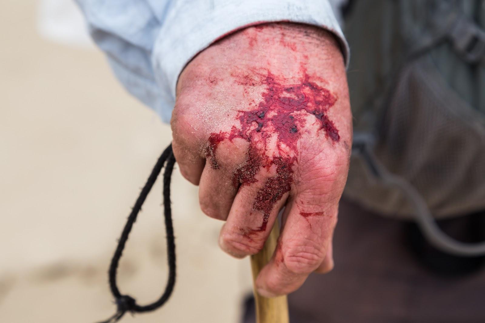 bleeding hand from hiking