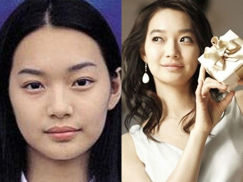 ... , aktris Korea Selatan sebelum dan sesudah melakukan operasi plastik