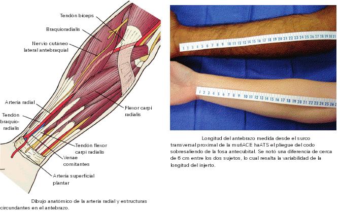 Bioasistencia Cardiaca: Arteria radial como hemoducto en la Cirugia ...