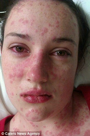 Itchy pussy freckles are not a dermatological issue - 1 3