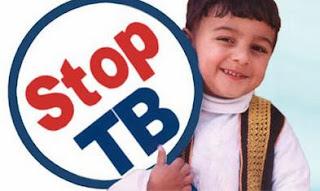 Gejala Tuberkulosis (TBC) Pada Anak