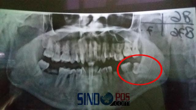 Impaksi Pada Gigi Bungsu dan Harus Operasi Odontectomy