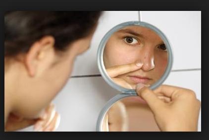 Tips perawatan wajah berjerawat