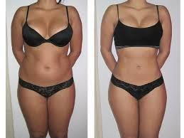 before and after lipo suction