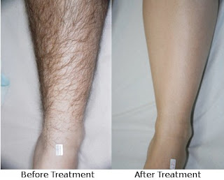 before and after silk'n sensEpil treatment