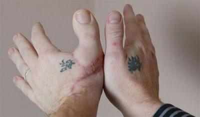 The Unusual Transplant Thumb Surgery